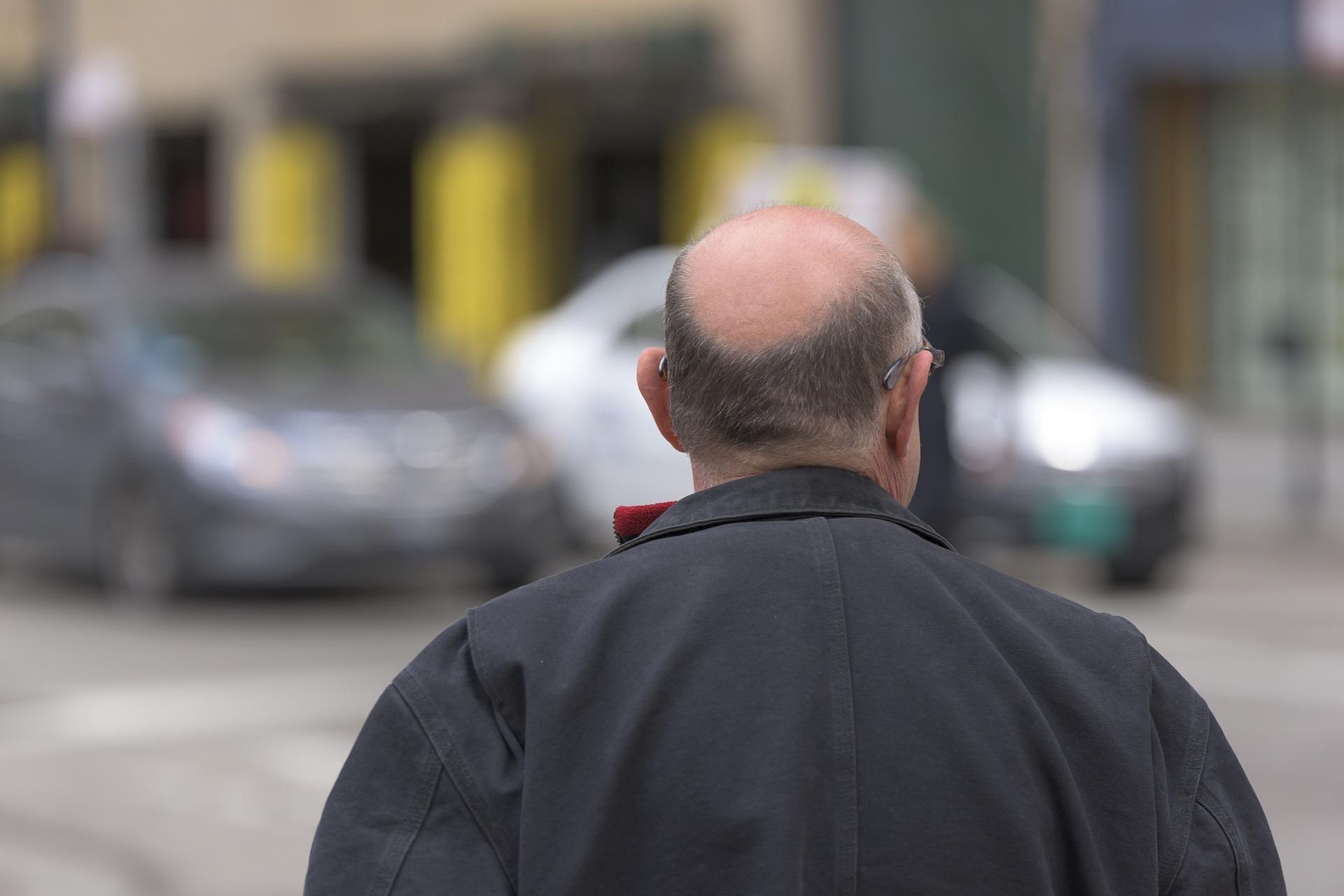 Viaja a Turquía para ponerse pelo y le implantan vello púbico